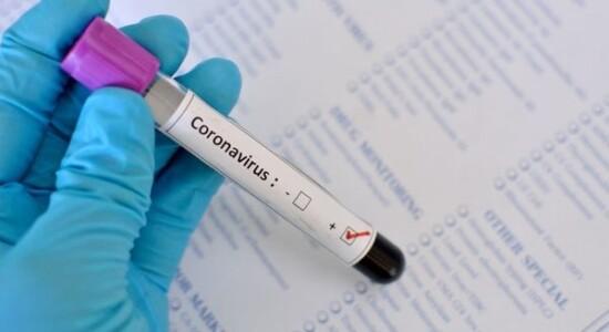 Empresa diz ter encontrado anticorpo que cura a Covid-19
