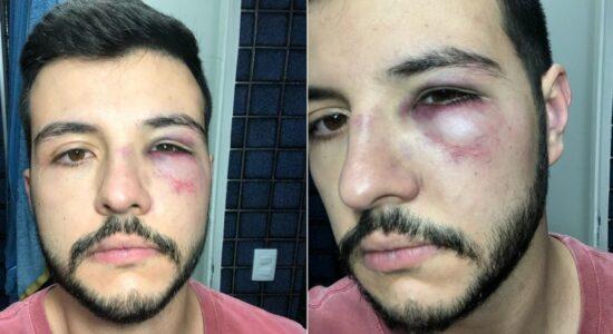 Matheus Ribeiro ficou com o olho roxo após levar soco de assaltante