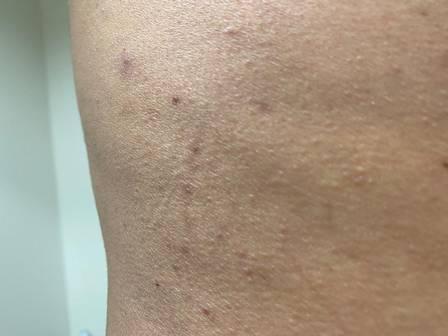 Foto: Tom Veiga narra agressão que ele teria sofrido da ex-esposa