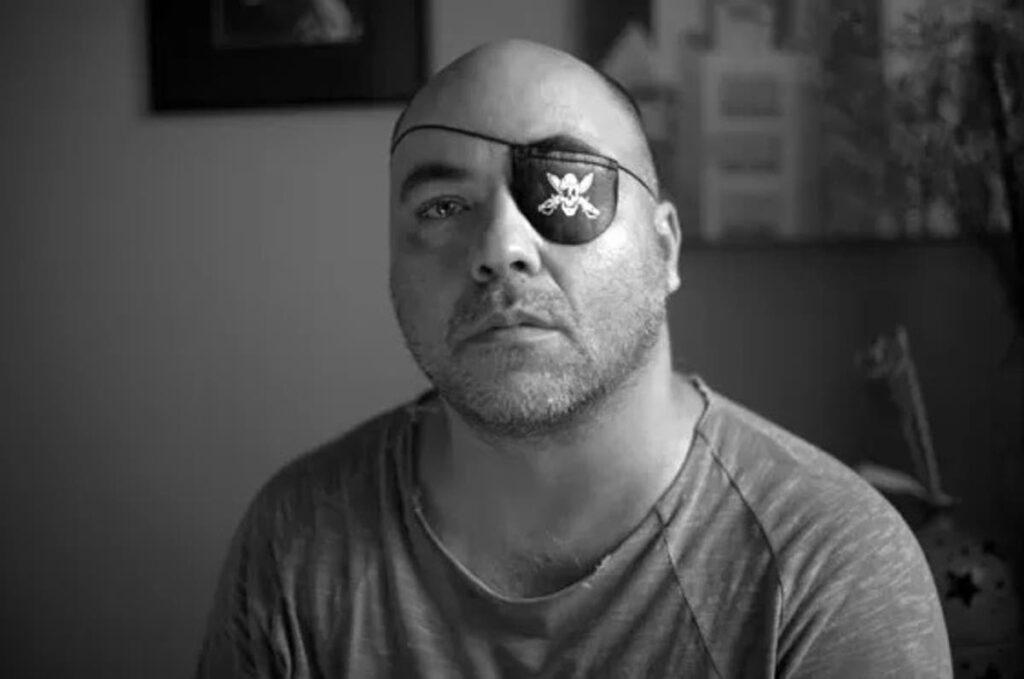 fotógrafo Alex Silveira atingido por bala de borracha no olho esquerdo