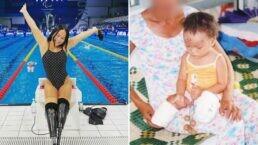 Nadadora paralímpica perdeu as pernas ao ser amarrada a uma bomba pelos pais quando bebê
